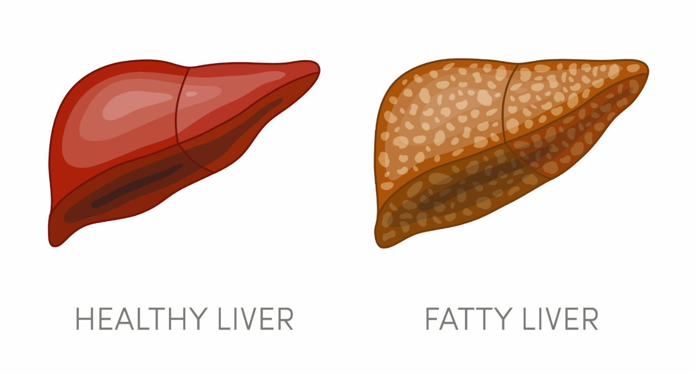 What is Fatty Liver